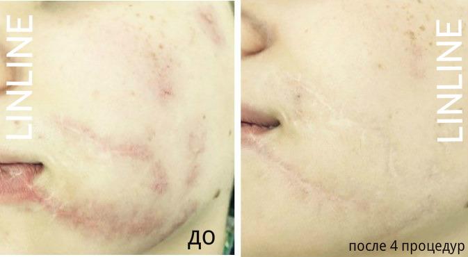 удаление рубцов и шрамов ЛинЛайн
